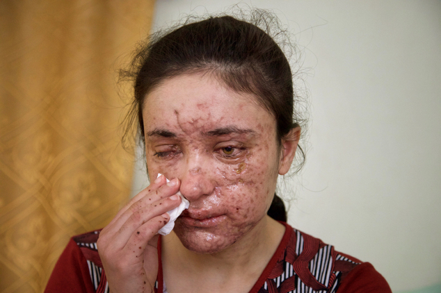 Lamiya Aji Bashar, an 18-year-old Yazidi girl who escaped her Islamic State group enslavers, talks to The Associated Press in northern Iraq in this May 5, 2016 photo. She described how she was abducted along with her sisters and brothers when IS overran her village in 2014 and was passed around from militant to militant, trying to escape many times. Finally she succeeded in March, but only after a mine exploded, killing two girls fleeing with her and leaving Bashar's face scarred and blinding her in one eye. (AP Photo/Balint Szlanko)
