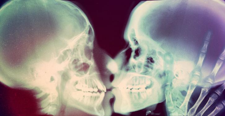 top-5-razloga-zašto-biti-gej-nije-nimalo-okej-poljubac-rendgen